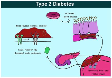 Essays about type 2 diabetes